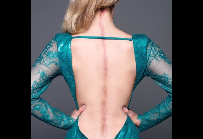 Victoria Graham shows her scar