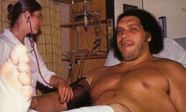 andre the giant medical acromegaly japan diagnosis andre roussimoff disease disorder condition