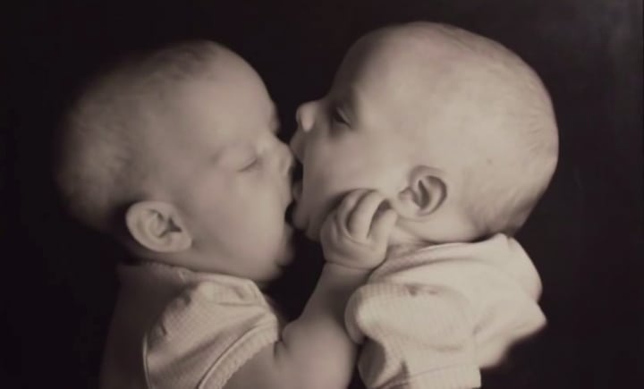 conjoined twins carlsen twins